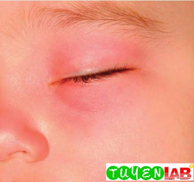 Periorbital erythema and swelling in a 1-year-old child with pansinusitis and left orbital abscess