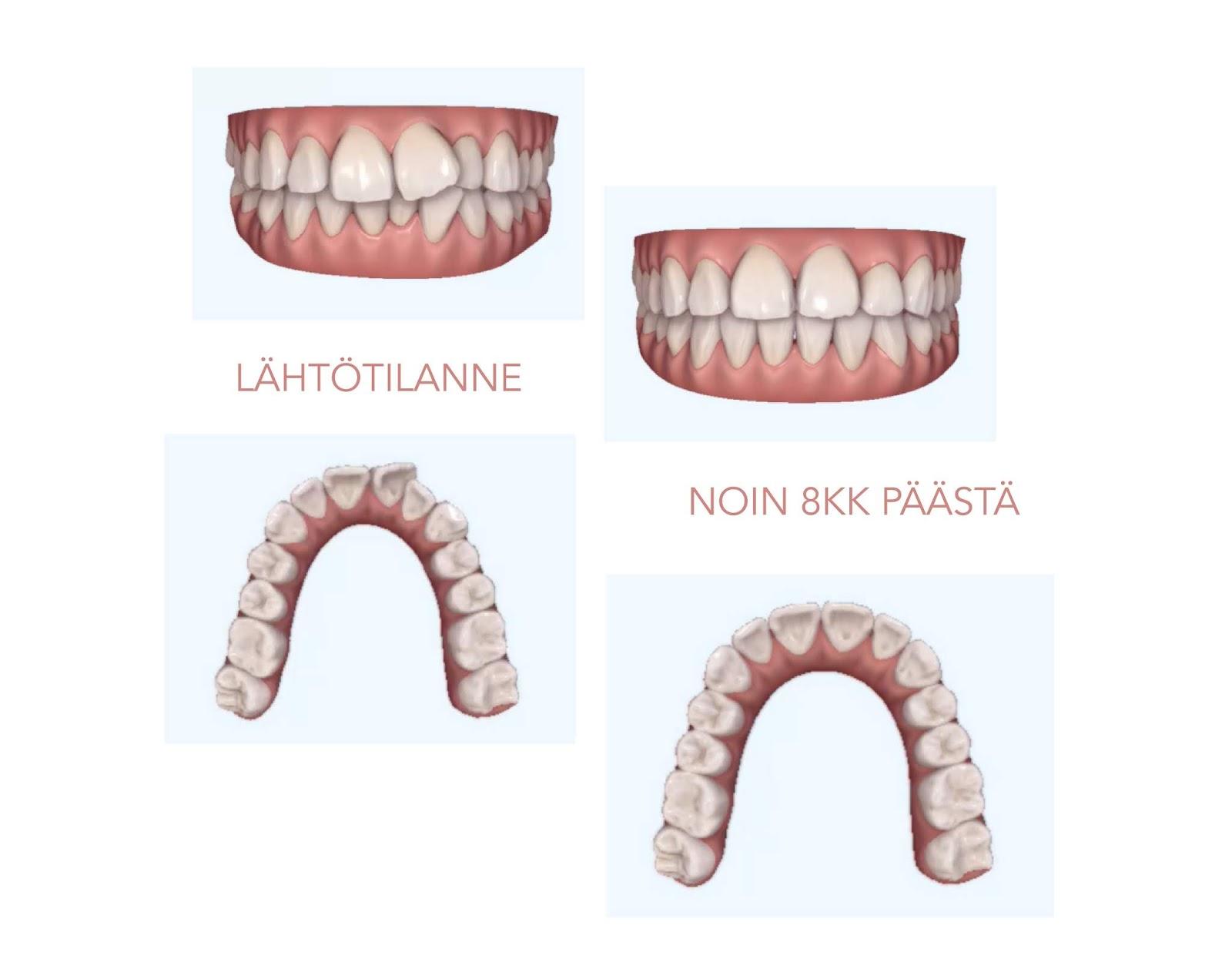 Suorat hampaat oikomishoito