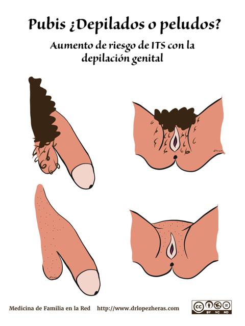 adelgazar el pubis masculino