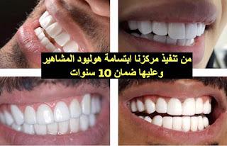 اروكا الطبي للاسنان الجلديه الليزر