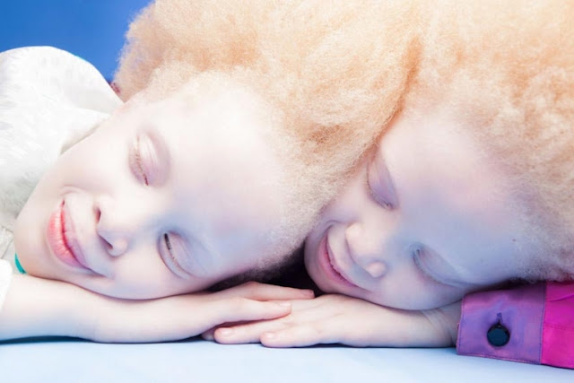 Skinned Twins Anomaly Conquered The Style Trade of its Unearthly Beauty
