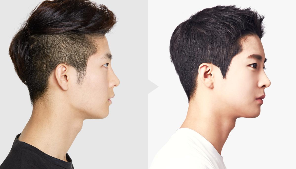 Asian men plastic surgery
