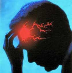 ada yang salah dengan pembuluh darah di otak. Perawatan Untuk Stroke - Apa itu Stroke?