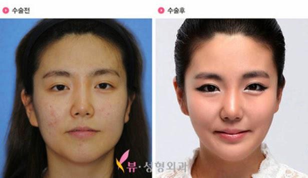 Transformaciones extremas gracias a la cirugía estética.