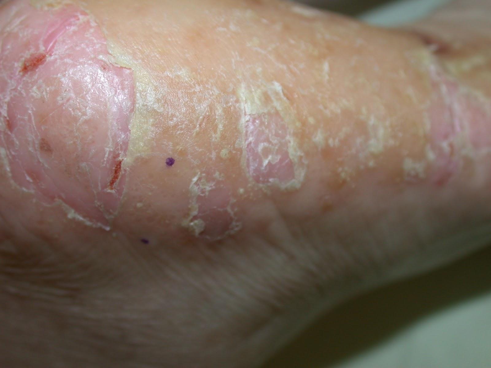 可觀焉-謝志偉皮膚科醫師的筆記: 和皰疹沒什麼關系的一種手部濕疹-汗皰疹(汗皰疹. pompholyx)