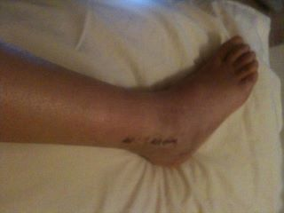 Broken Ankle - Being Plastered for 8 week: 6 weeks and the cast is off