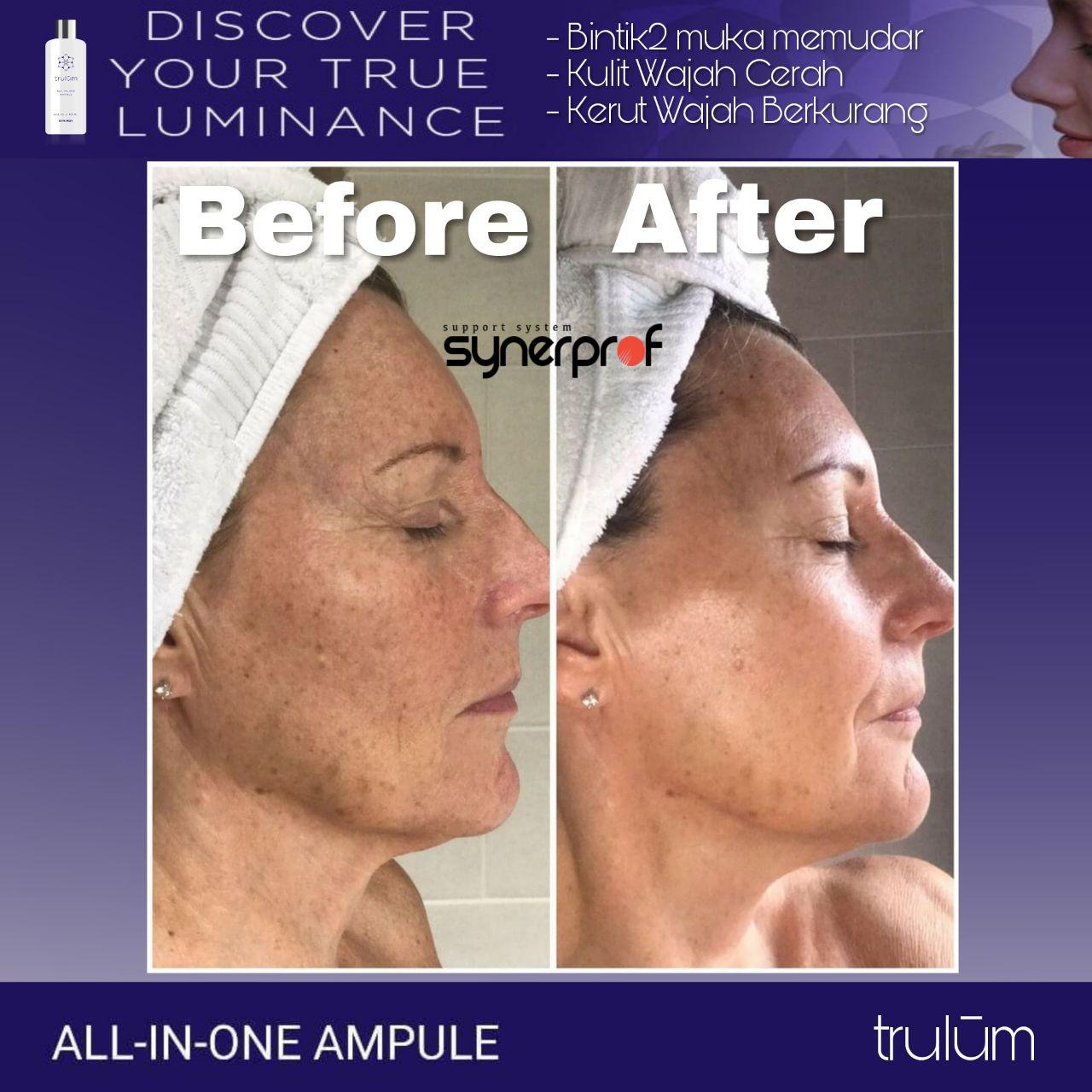 Jual Trulum All In One Ampoule Di Enggal WA: 08112338376
