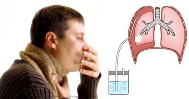 Obat Paru Paru Bocor Herbal, Paling Ampuh Sembuhkan Paru Paru Bocor Sampai Tuntas : QnC Jelly Gamat Solusinya