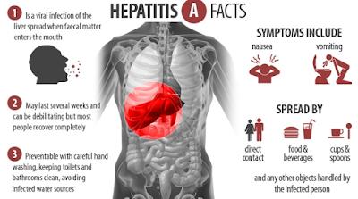 https://mustahabbah.blogspot.com/2017/07/gejala-klinis-hepatitis-akutpencegahan.html