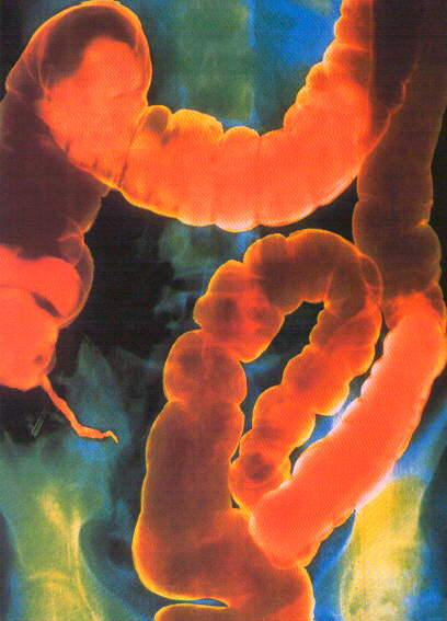 ricetta per la pulizia del parassita del colon fatto in casa