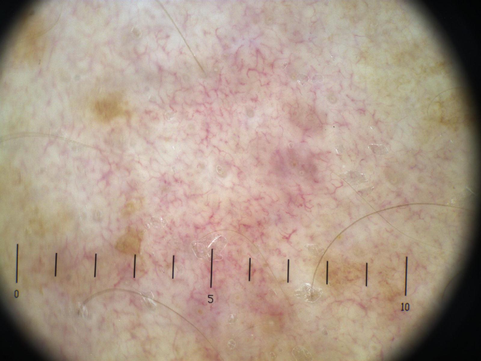 Consultations in Dermatoscopy: Tim Hackett - Hypopigmentation