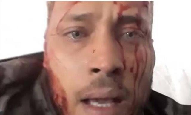 Óscar Pérez, piloto rebelde contrário ao presidente Nicolás Maduro é alvo de operação de captura