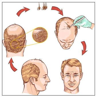 Interesting Myths About Hair Restoration You Need To Know!