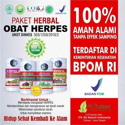 Cara mengatasi herpes