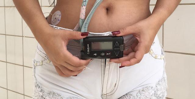 bomba-de-insulina-no-abdomem