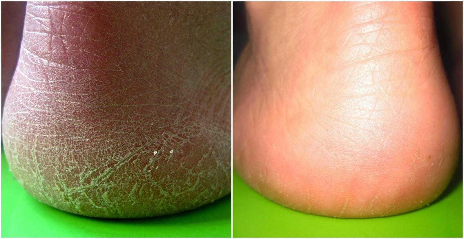 Glyukonat del calcio a la psoriasis