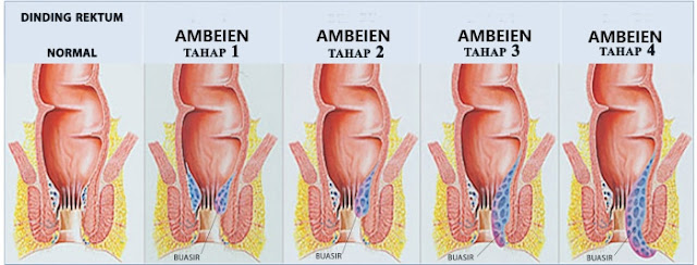 Obat Wasir/ Ambeien yang Ada di Apotik