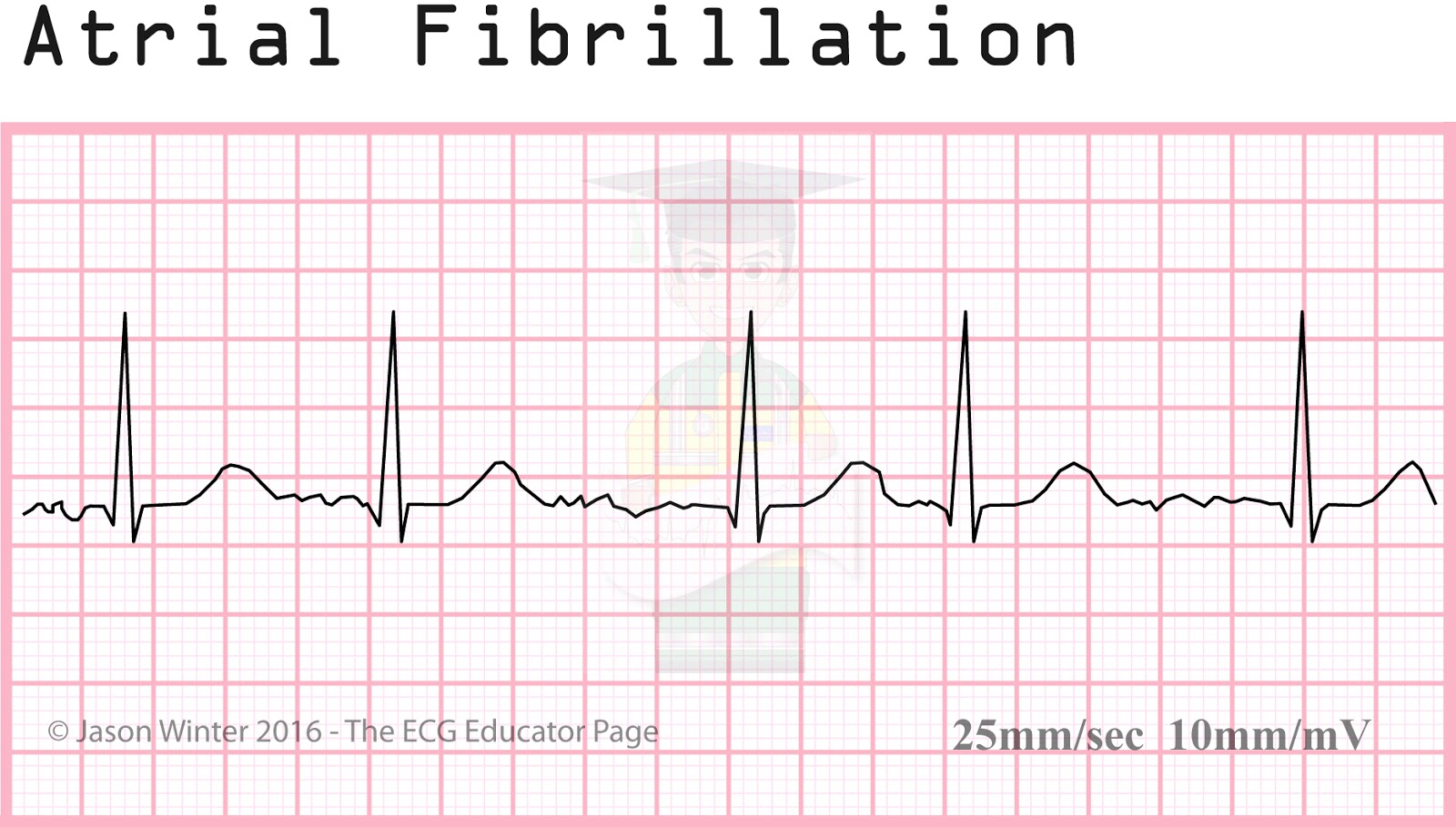 Ecg Educator Blog Atrial Rhythms