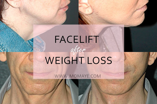 facelift, health, weight loss