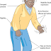 Information Parkinson's Symptoms And Identifying Parkinson's Steps