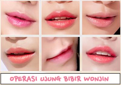 Bibir Cantik Dan Menarik Dengan Operasi Ujung Bibir Wonjin