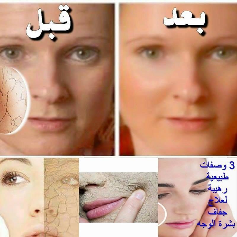 a6a962fbeb73b أفضل الماسكات للتخلص من جفاف الجلد