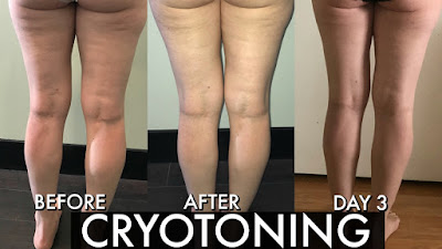 cryo toning, cryotoning, cryotonning, cryoskin2.0, how to get rid of cellulite, how to get rid of fine lines, how to tone your body,