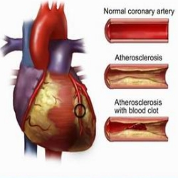 Nurse Health Guides : How to clear clogged arteries