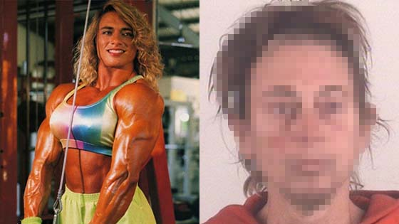 Keadaan Mengejutkan Wanita Ini Selepas 20 Tahun Menggunakan Steroid