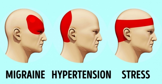 How To Get Rid Of A Headache In 5 Minutes Without Medication