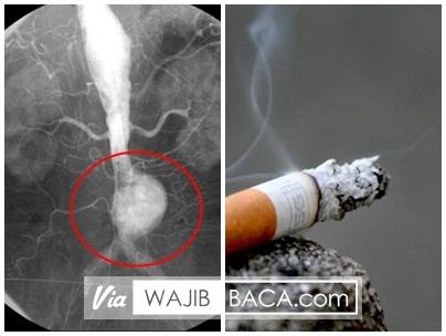 Penelitian Baru, Merokok Bisa Bikin Pembuluh Darah Meledak! SEBARKAN!