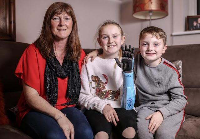 Τα πιο γλυκά Χριστούγεννα: Ανώνυμος δωρητής χαρίζει σε 11χρονη χωρίς άνω άκρο ένα βιονικό χέρι