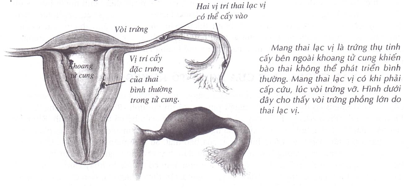 Mang thai lạc vị, mang thai ngoài tử cung