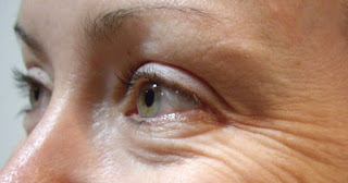 Garis halus di sekitar sudut mata disebut juga sebagai kaki gagak 10 Cara Alami Menghilangkan Garis Halus di Sudut Mata