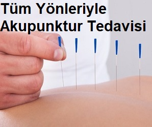 Tüm Yönleriyle Akupunktur Tedavisi