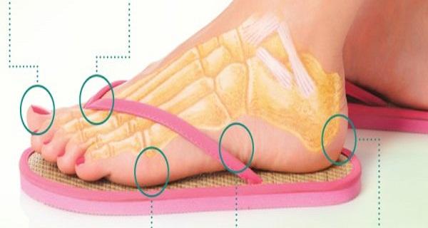 medicii ortopezi avertizeaza ca purtarea de papuci de plaja este daunatoare pentru sanatate