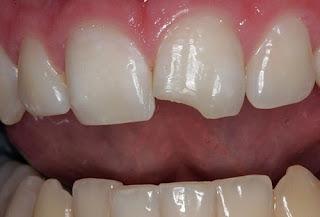 Bị mẻ răng cửa có trám được không?