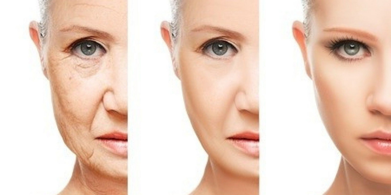 Before and After Anti Ageing Girl