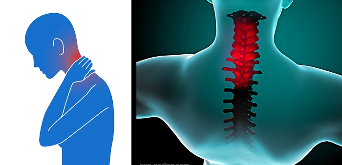 How To Get Rid Of A Stiff Neck Naturally, In Just 90 Seconds