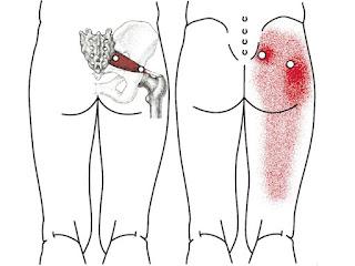 O que fazer quando o nervo Ciático inflama e ataca a perna?