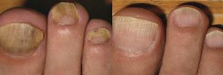 tırnak mantarı doğal tedavisi