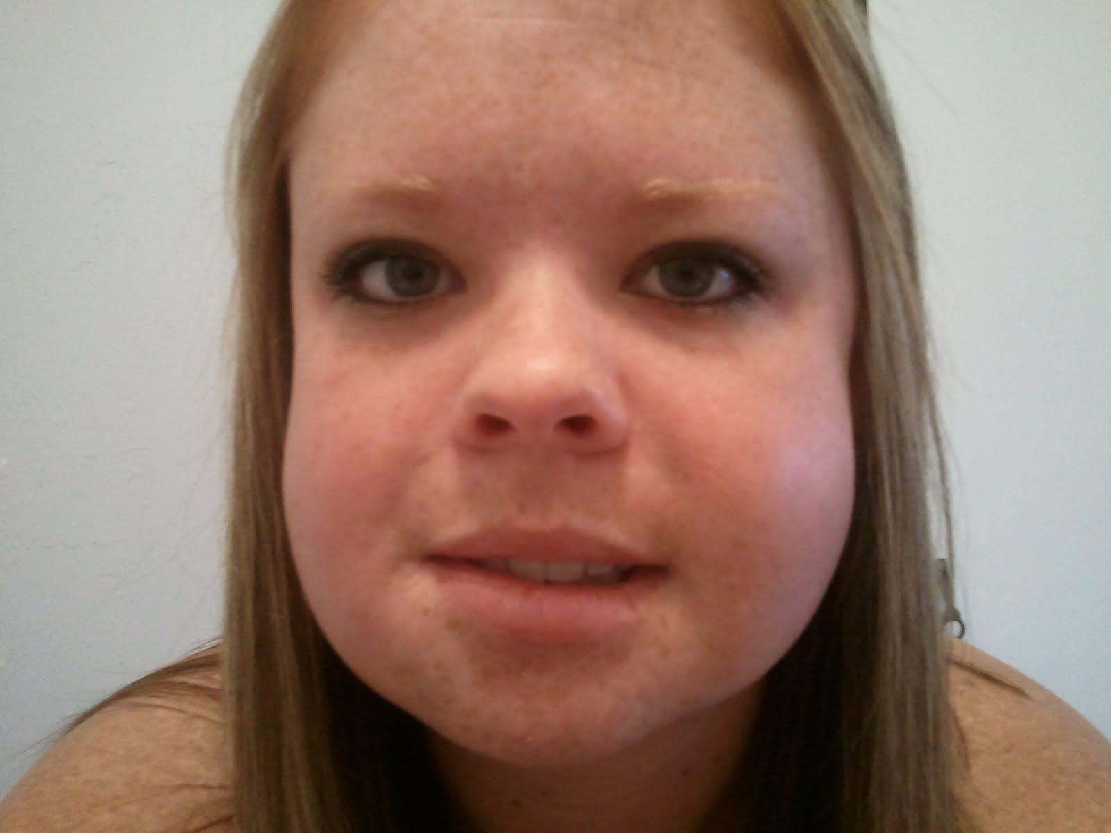 Wisdom Teeth Facial Swelling 36