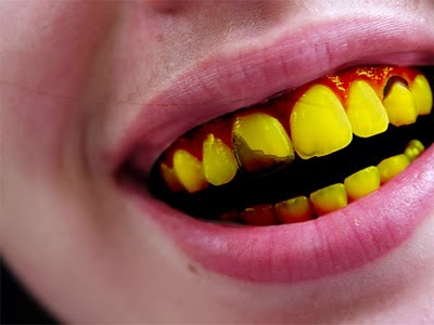 JL Company : Causes and How to whiten yellow teeth.