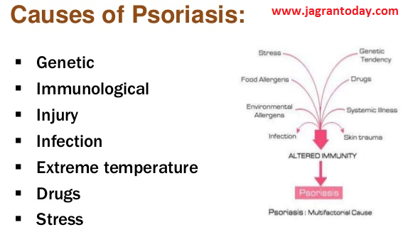 Causes and Symptoms of Psoriasis