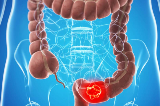 What Influences Stage 4 Colon Cancer Prognosis