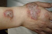 Obat gatal apotik untuk penyakit Eksim
