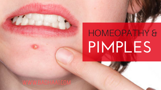 Homeopathic Remedies For Acne And Pimples
