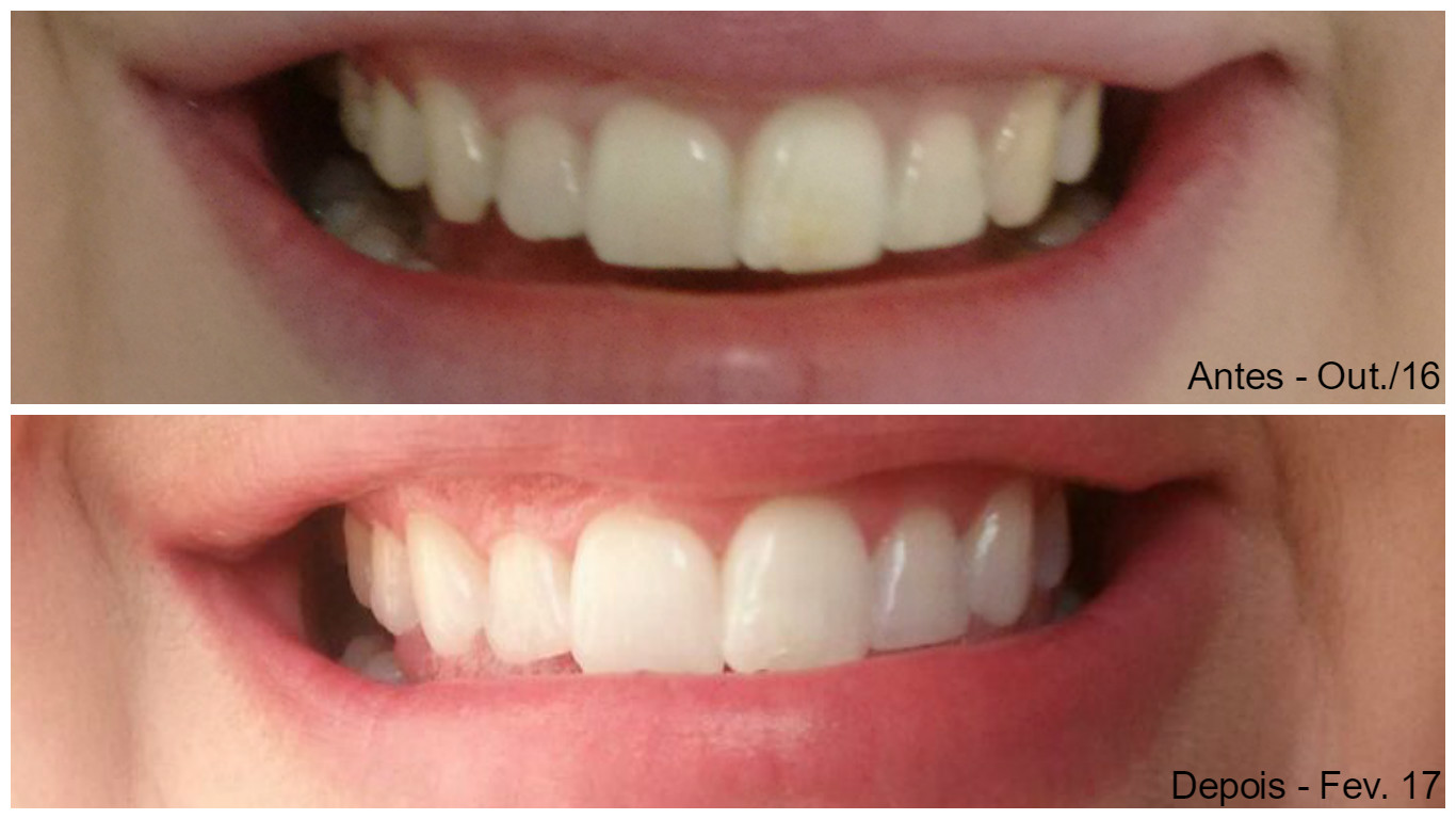 Clareamento Dental Sorridents Guaruja Universo Ma Cherie