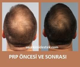 prp saç tedavisi yaptıranlar 27