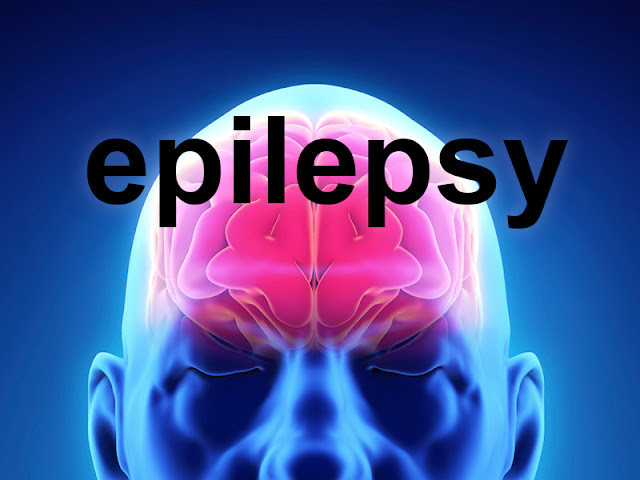 http://www.chennaibrainandspine.com/epilepsy-caused-by-tumors-or-malformations-of-blood-vessels.html